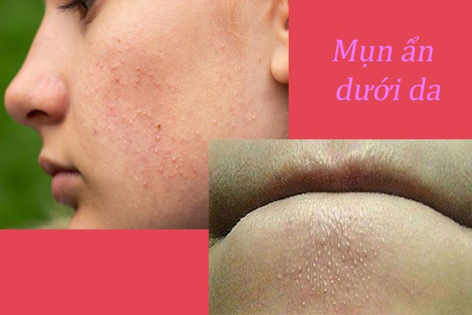 Tác dụng của các phương pháp thiên nhiên với trị mụn ẩn dưới da