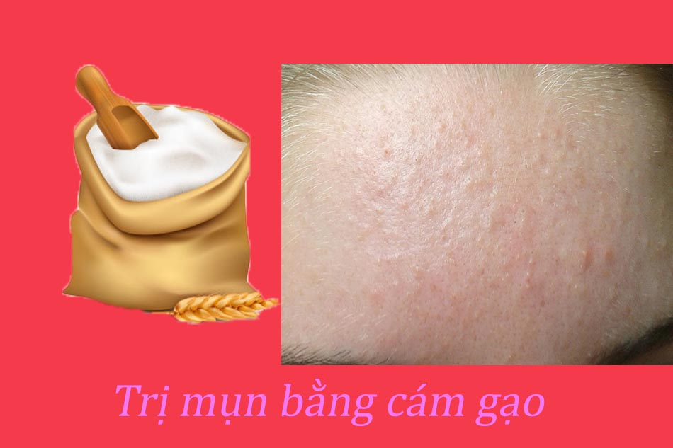 Cách trị mụn ẩn dưới da bằng cám gạo