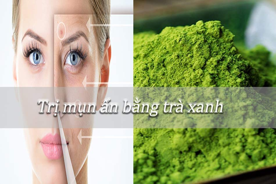 Cách trị mụn ẩn dưới da bằng bột trà xanh