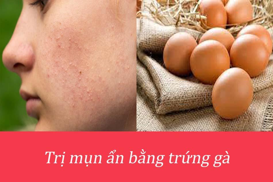 Cách trị mụn ẩn dưới da bằng trứng gà